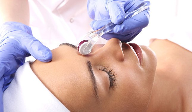 Microneedling Training Courses - image of treatment between the eyes