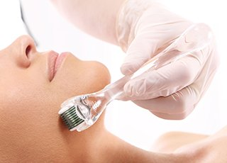 Beauty Therapy Training Courses - Microneedling treatment on clients face