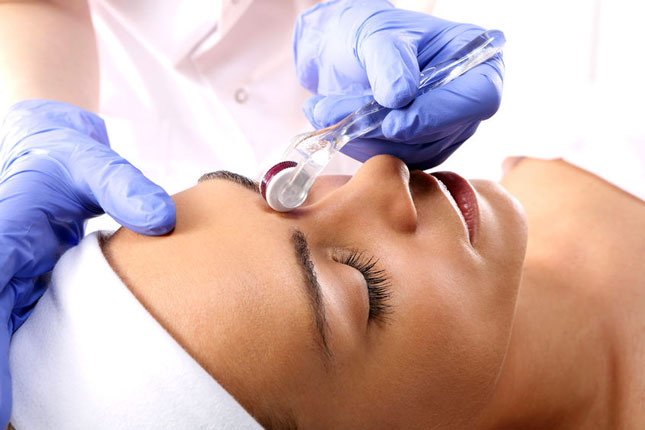 Microneedling Training Courses - image of treatment to the forehead